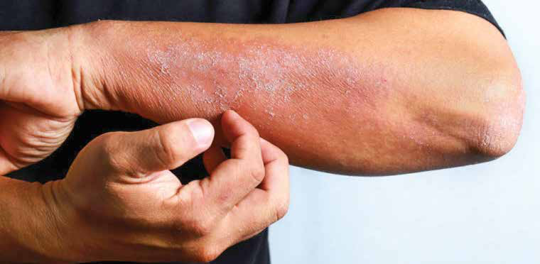Prevent and treat common spring rashes